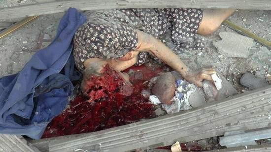 В сети появились шокирующие фото погибших в Луганске (18+)